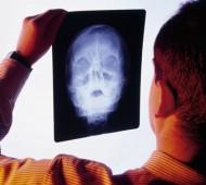 raio-x-radiografia-reciclagem