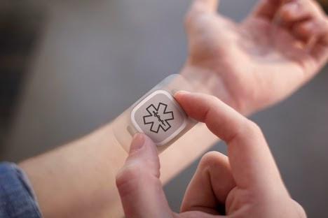 dialog-by-artefact sensor deteta ataques de epilepsia