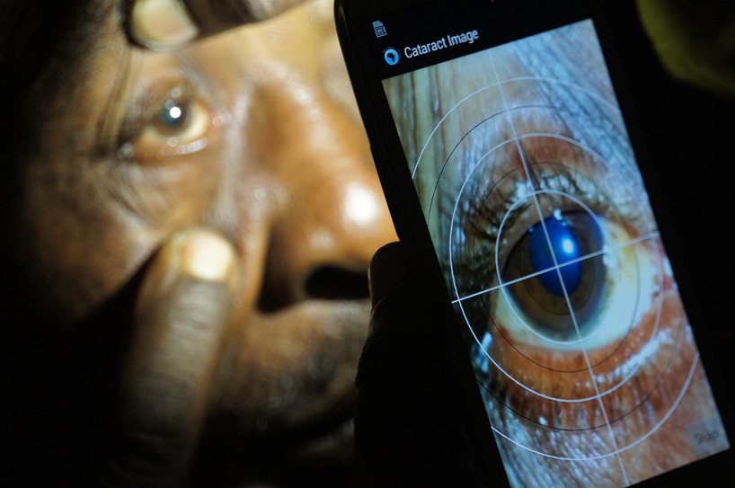 exame ocular visão cegueira