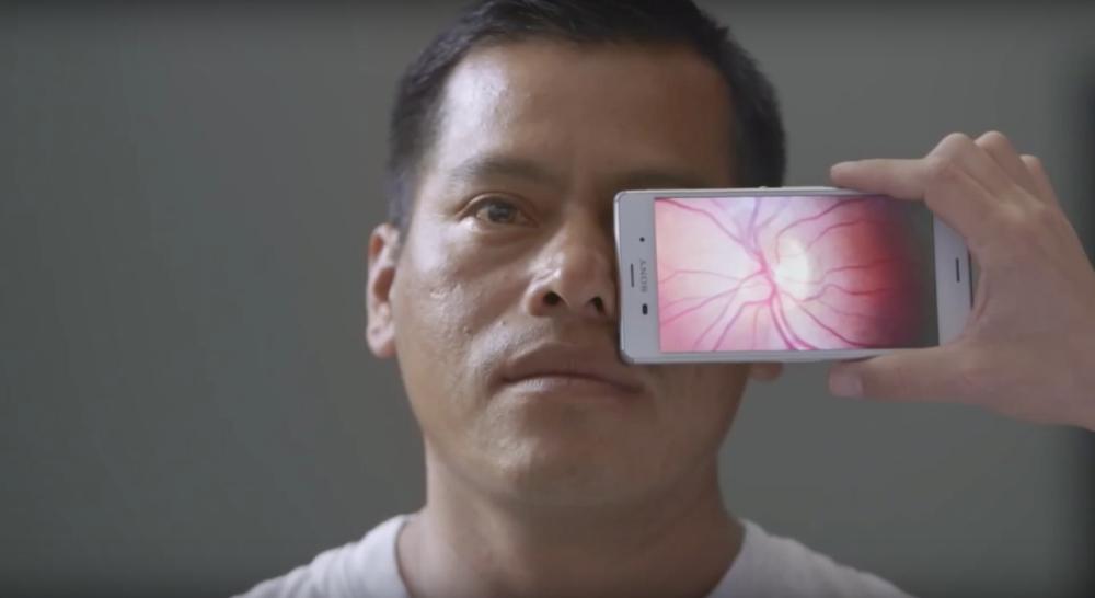 exame retina cegueira