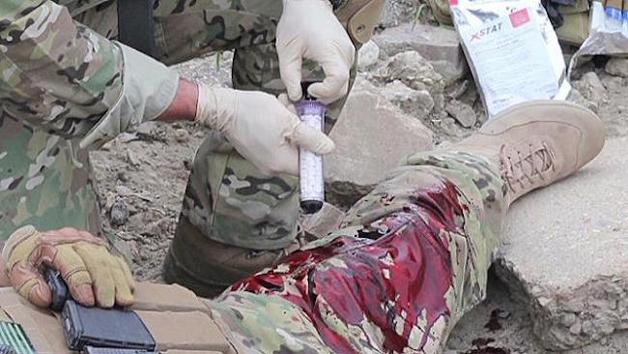 XStat seringa estanca sangue feridas profundas